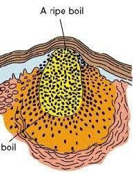 Why Does Diabetes Cause Boils?