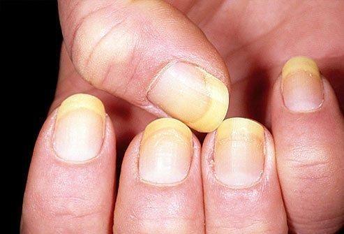 Diabetic Toe Nails