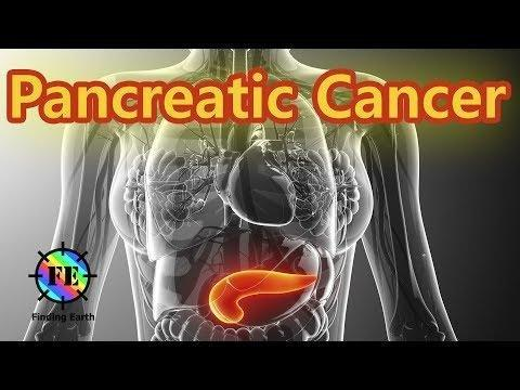 Can Uncontrolled Diabetes Cause Pancreatic Cancer?