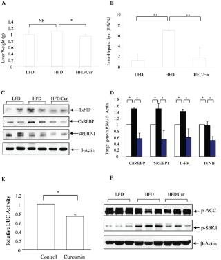 Curcumin Prevents High Fat Diet Induced Insulin Resistance And Obesity Via Attenuating Lipogenesis In Liver And Inflammatory Pathway In Adipocytes