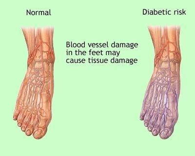 Diabetic Foot Care | Why Is Diabetic Foot Care Important?