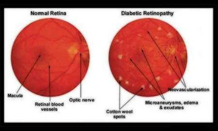 Etiology Of Diabetic Retinopathy