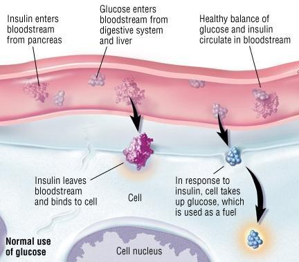 How Is The Pancreas Affected By Type 1 Diabetes?