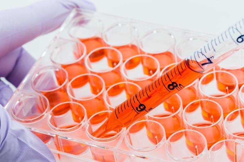 What Are Insulin Producing Cells