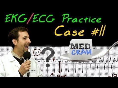 Ekg / Ecg Interpretation Explained Clearly Practice Case 11
