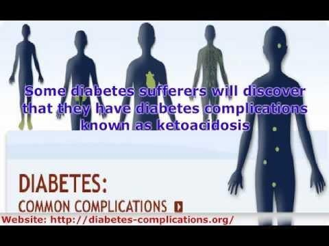 Is Diabetes Preventable