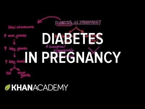 Type 2 Diabetes And Pregnancy Complications