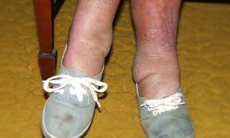 Diabetes And Leg And Foot Swelling