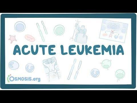 Full Length Article Glucose Metabolism Abnormalities Among Pediatric Acute Lymphoblastic Leukemia Survivors: Assessment And Relation To Body Mass Index And Waist To Hip Ratio