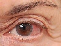 Diabetic Glaucoma Pathophysiology