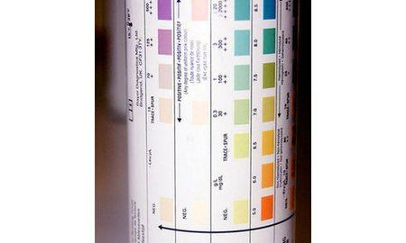 What Is Ketosis In Urine