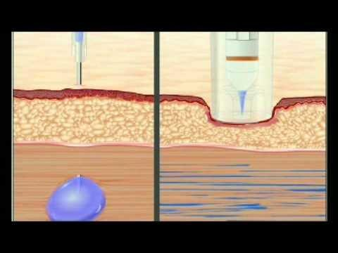 Free Blood Glucose Meter >> Needleless Glucose Meter | DiabetesTalk.Net