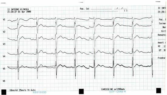 Hypokalemia And The Heart
