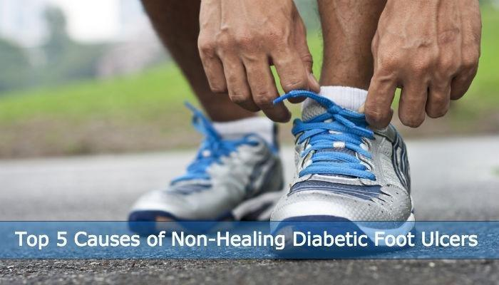 Top 5 Causes Of Non-healing Diabetic Foot Ulcers (and How To Prevent Them)