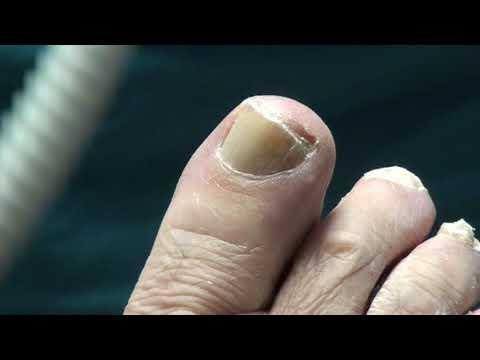 Diabetes Toe Nails