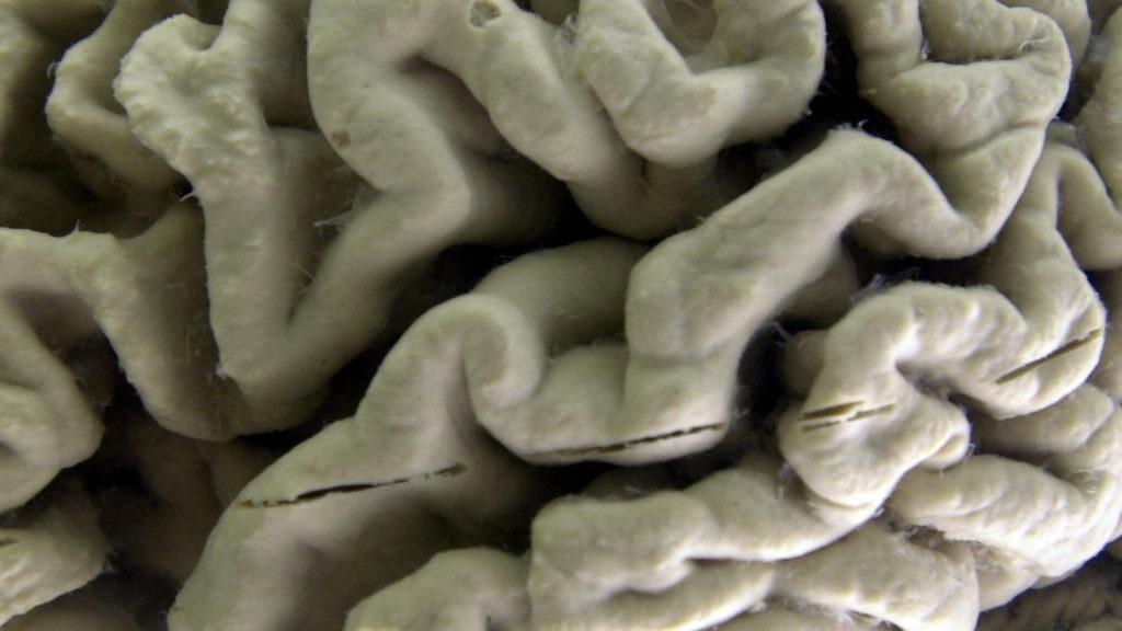 'Type 3 diabetes': New links emerge between poor glucose metabolism and Alzheimer's disease