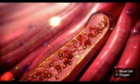 Lactic Acidosis In Dka