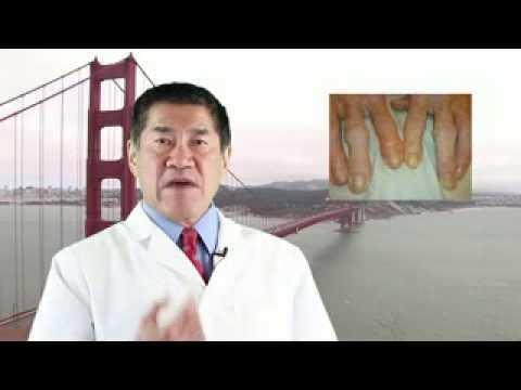 Are Diabetes And Arthritis Related