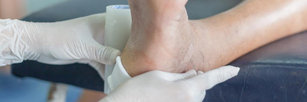 NIHR Signal Heel casts do not improve heel ulcers in diabetes