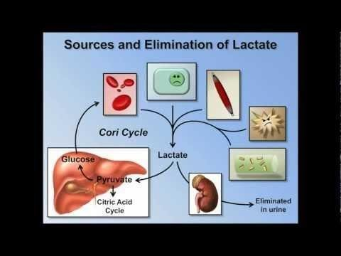 Lactic Acidosis Workup: Approach Considerations, Other Tests, Anion Gap