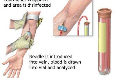 When Should Random Blood Sugar Be Tested?