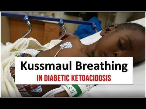 What Is Kussmaul Breathing?