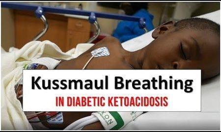 How Long Can Diabetic Ketoacidosis Last