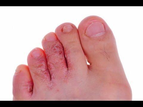 What Does Diabetes Look Like On Feet