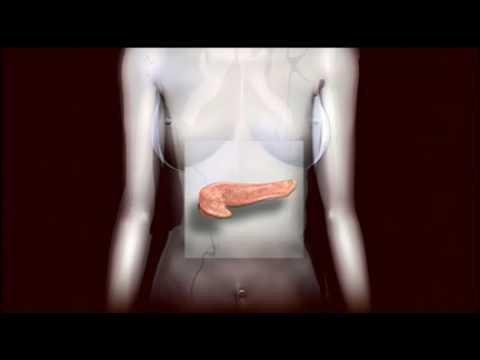 Type 2 Diabetes Awareness Month