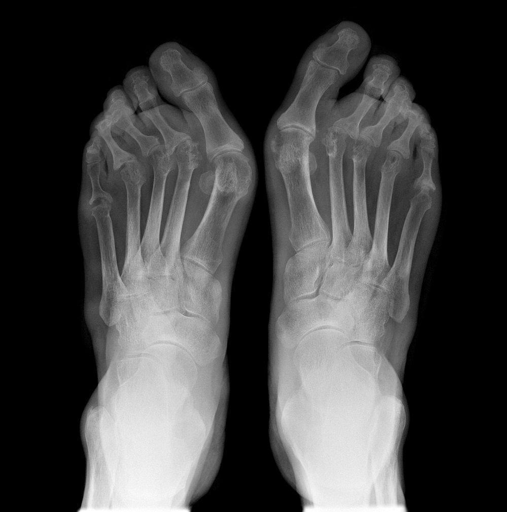 Link Between Type 2 Diabetes And Rheumatoid Arthritis