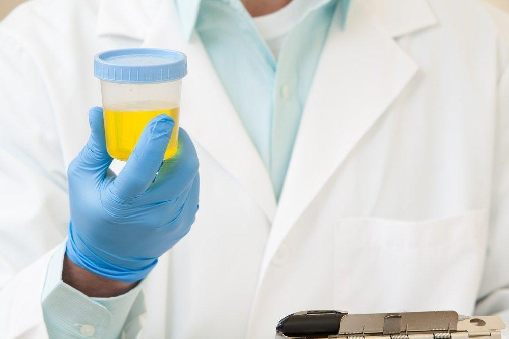 Hematuria: 10 Causes Of Blood In The Urine