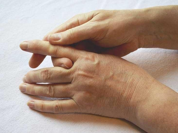 Trigger Finger Surgery: Recovery, Procedure, And More