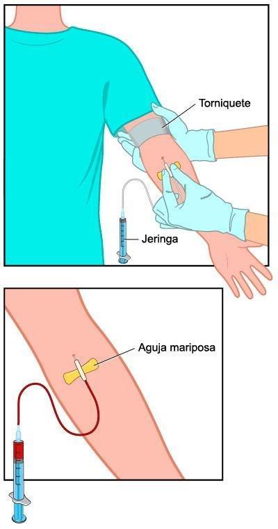 Anlisis De Sangre: Insulina