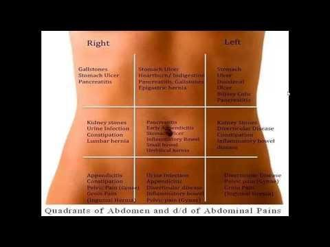 Dka Abdominal Pain Location