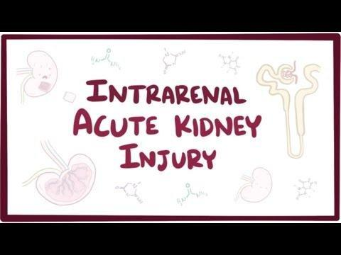 Why Does Acute Kidney Injury Cause Metabolic Acidosis?