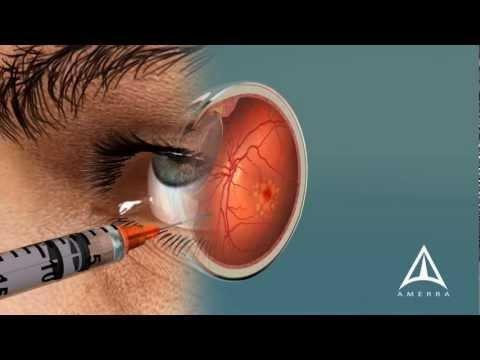 Eye Complications In Diabetes