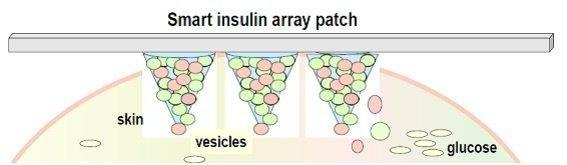 Smart Insulin Patches Or Glucose-responsive Insulin Delivery Systems