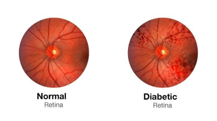 Can Diabetic Blindness Be Reversed
