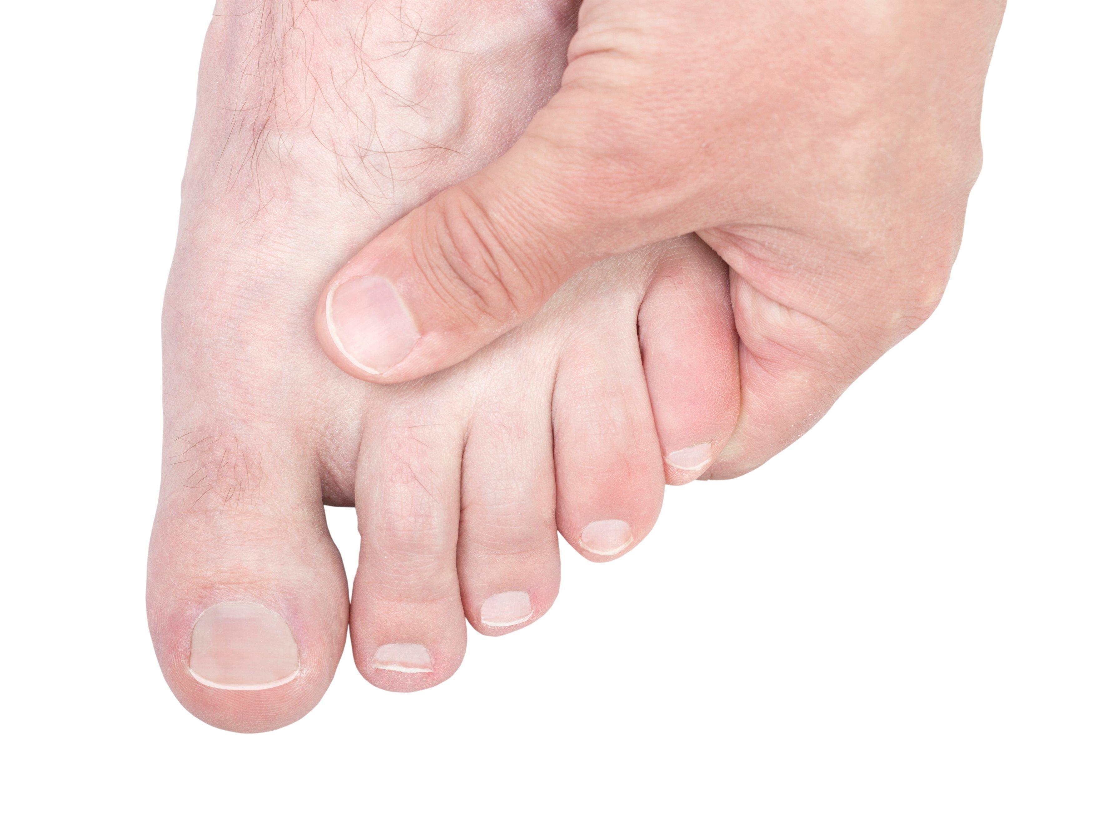 How High Does Blood Sugar Have To Be To Cause Neuropathy