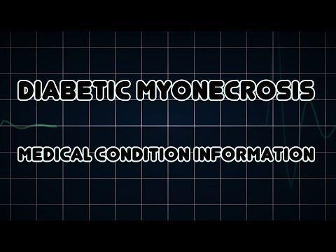 Diabetic Myonecrosis