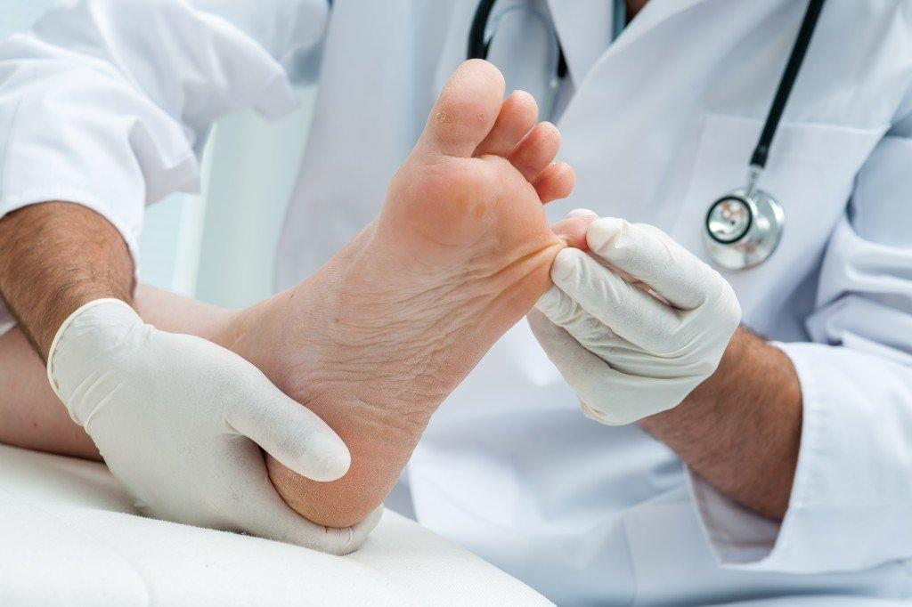 Early Signs Of Diabetic Foot Ulcers