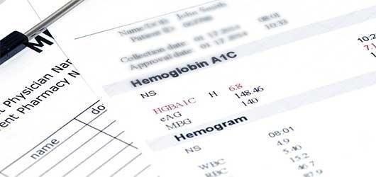 Glucose Testing: The Abcs Of A1cs