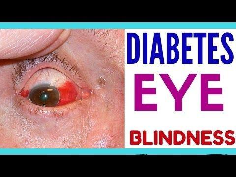 How Does Diabetes Affect Your Eyesight?