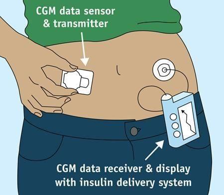 Type 1 Diabetes Blood Sugar Monitoring