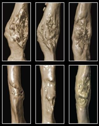 Diabetes: Stimulating bone stem cells may improve fracture repair