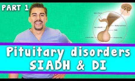 Diabetes Insipidus Sodium Levels