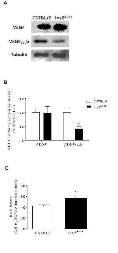 Oxidative Stress Modulates The Expression Of Vegf Isoforms In The Diabetic Retina