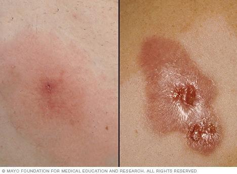 Diabetes Staph Infection