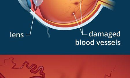 Diabetes And Diabetic Retinopathy: Q&A