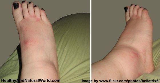 Diabetic Leg Swelling Treatment